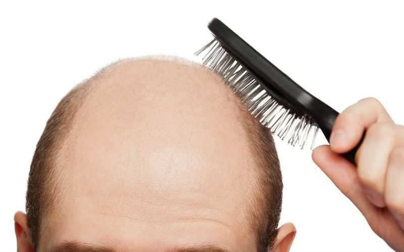 Мужчина делает массаж облысевшей части головы