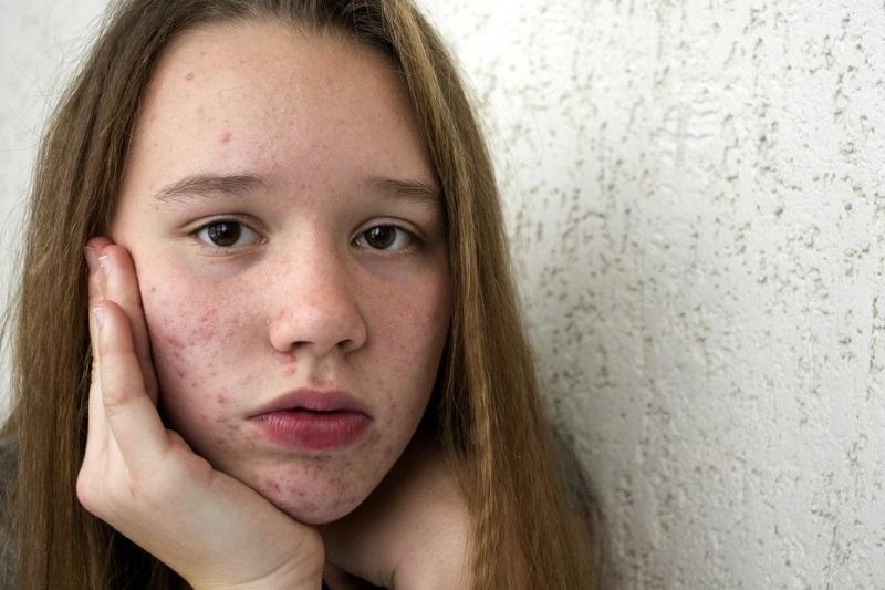подростковый суицид